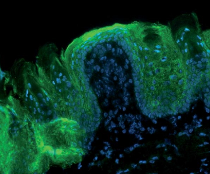 Immunfluoreszenz