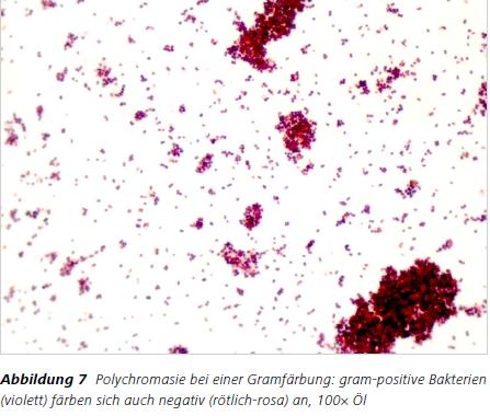 Abbildung 7 Polychromasie bei einer Gramfärbung: gram-positive Bakterien (violett) färben sich auch negativ (rötlich-rosa) an, 100× Öl