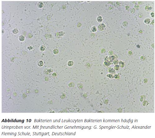Abbildung 10 Bakterien und Leukozyten Bakterien kommen häufig in Urinproben vor. Mit freundlicher Genehmigung: G. Spengler-Schulz, Alexander Fleming Schule, Stuttgart, Deutschland