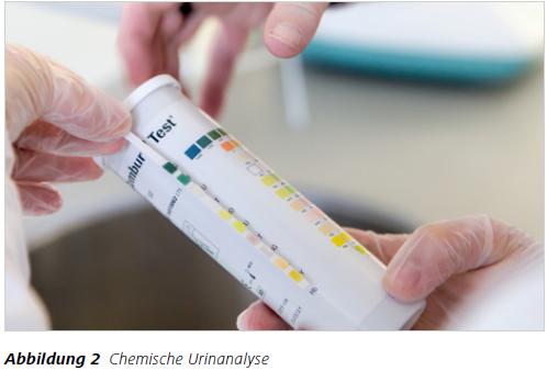 Abbildung 2 Chemische Urinanalyse