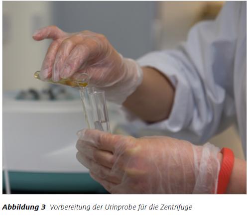 Abbildung 3 Vorbereitung der Urinprobe für die Zentrifuge