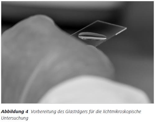 Abbildung 4 Vorbereitung des Glasträgers für die lichtmikroskopische Untersuchung