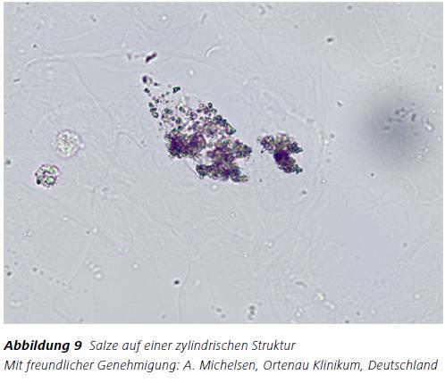 Abbildung 9 Salze auf einer zylindrischen Struktur Mit freundlicher Genehmigung: A. Michelsen, Ortenau Klinikum, Deutschland