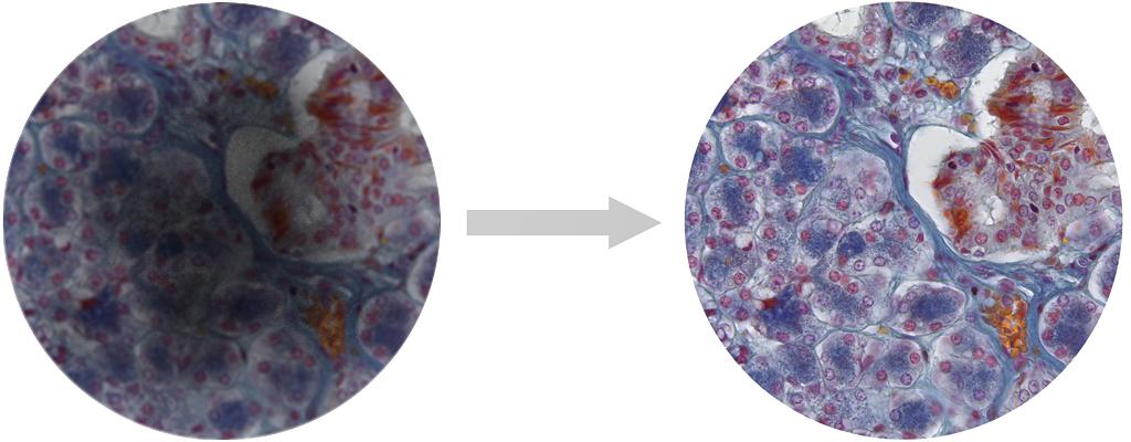 Mikroskopbild unscharf, Objektiv Wartung notwendig